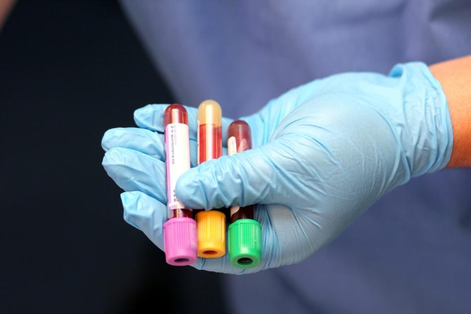 Для чего сдают анализ на гормоны щитовидной железы?